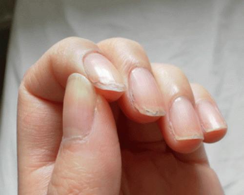В медицинской терминологии данное состояние, когда слоятся и ломаются ногти, относят к ониходистрофиям.